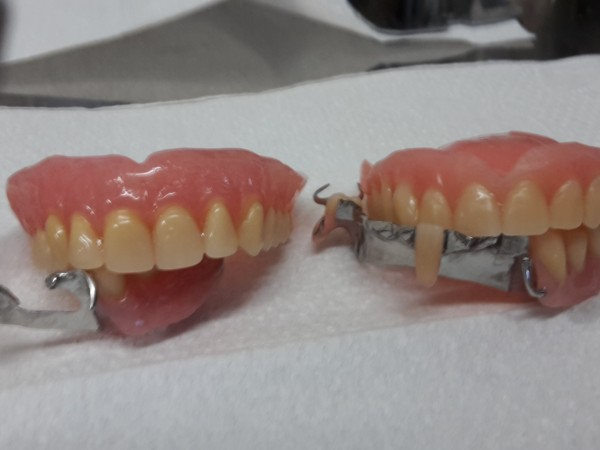 New and Old denture